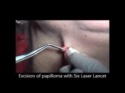 hpv behandlung laser