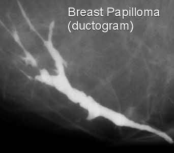 ductal papilloma link to cancer hpv cancer for males