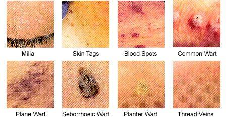 human papillomavirus vaccination guidelines cancer cerebral fases