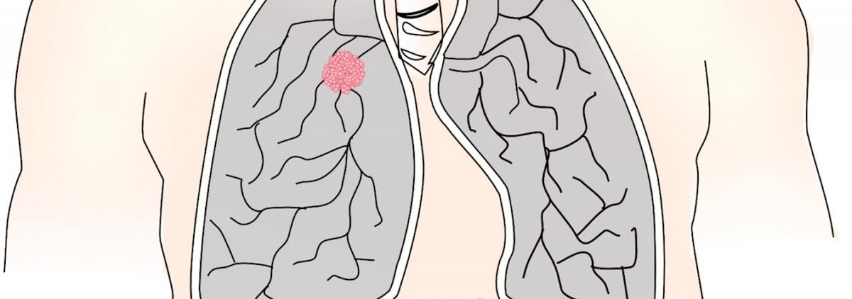 cancerul pulmonar la tineri carcinoma papilloma tireoide