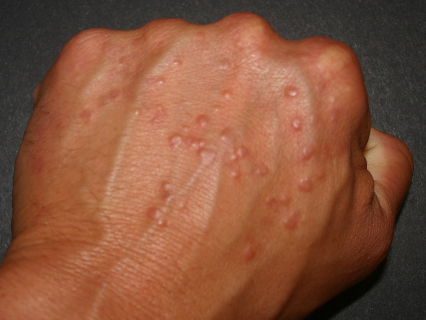 warts on hands not itchy toxin muscle