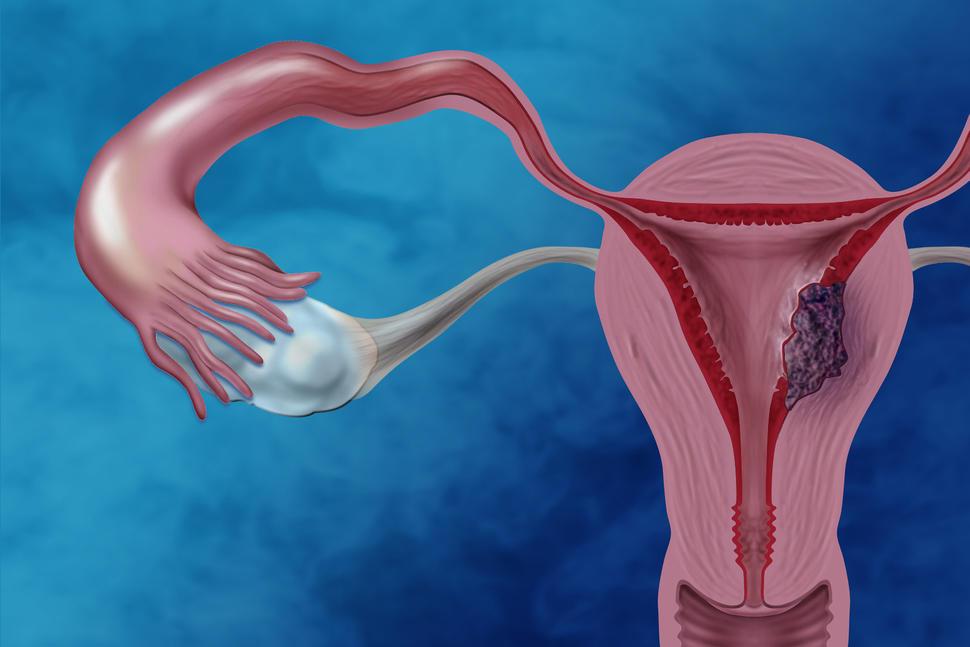 papiloma humano en hombres se quita hpv treatment san antonio
