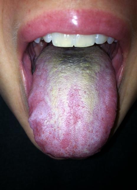 virus papiloma humano verrugas en las manos
