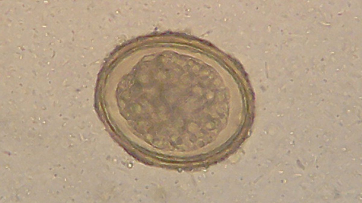 Helminthiasis giardiasis, imagini ascariasis
