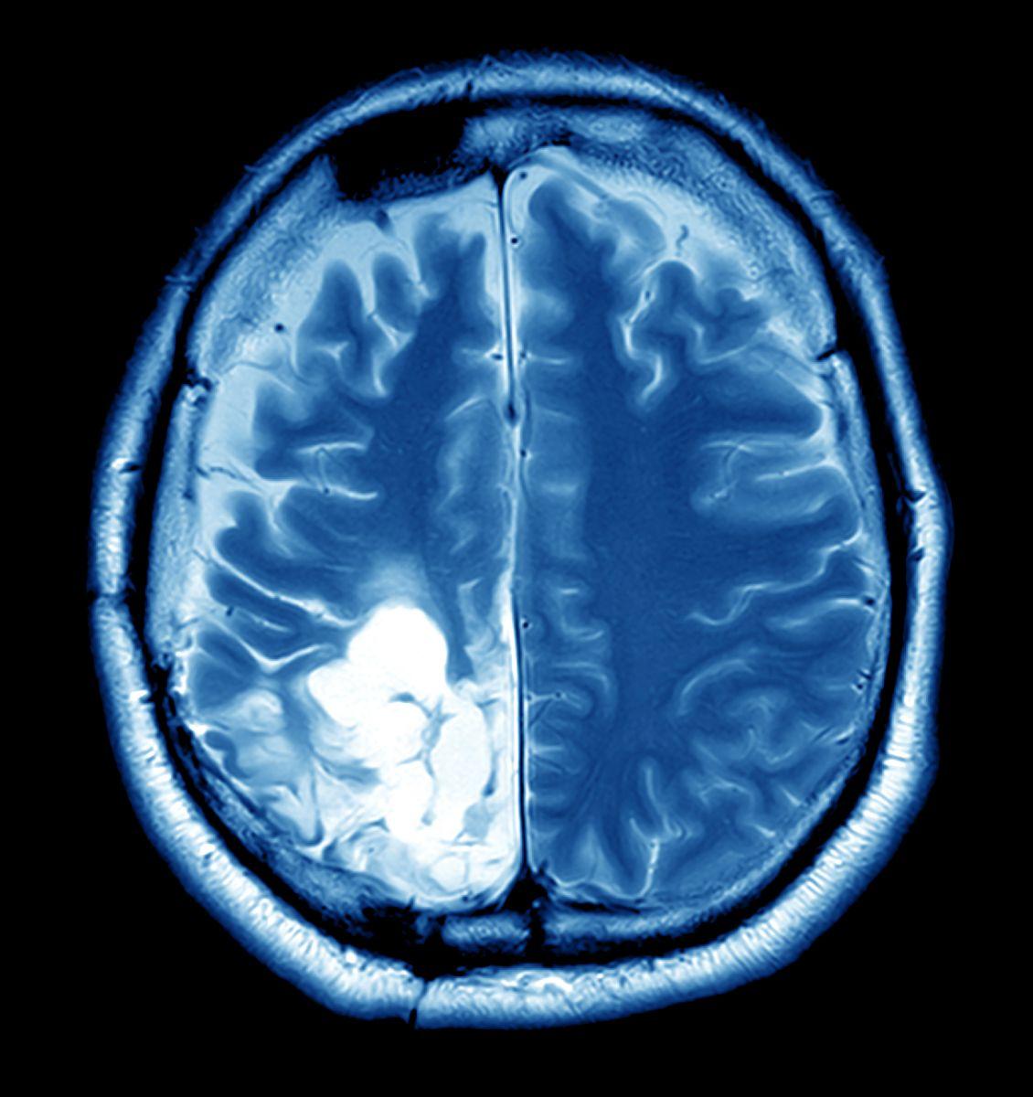 cancer benign brain tumor