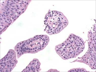 what causes papilloma in bladder