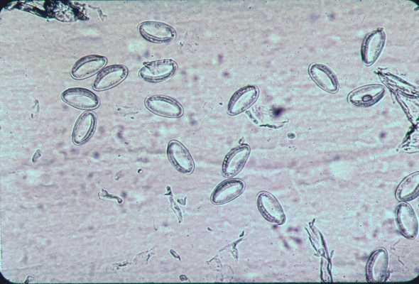 enterobius vermicularis scotch test