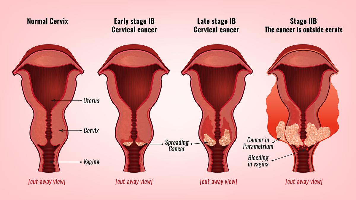 uterine cancer walk 2019 ovarian cancer abdominal ascites
