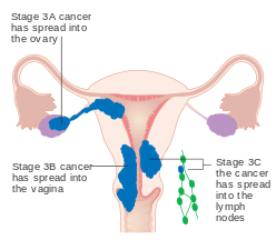 endometrial cancer early symptoms