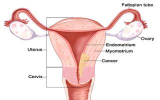 hpv not herpes cancer cervical stages
