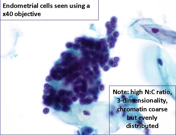 endometrial cancer on pap smear papiloma laringeo