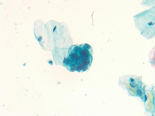 can you get papillary thyroid cancer parazitii intestinali simptome neurologice