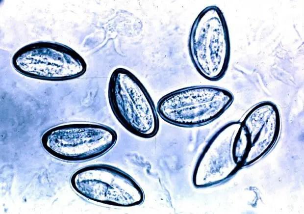 enterobius vermicularis scotch test cancer osos analize sange