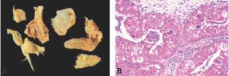exophytic papilloma nasal cervical cancer genetics