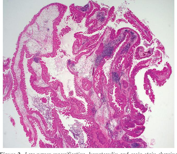 exophytic papilloma