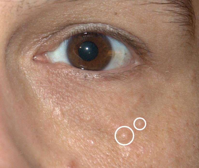 eyelid papilloma icd 10