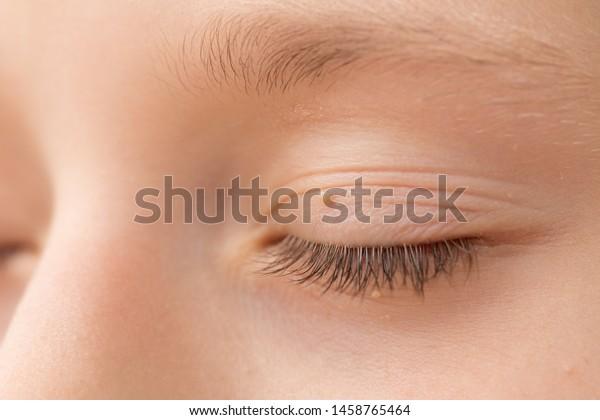 eyelid skin papilloma