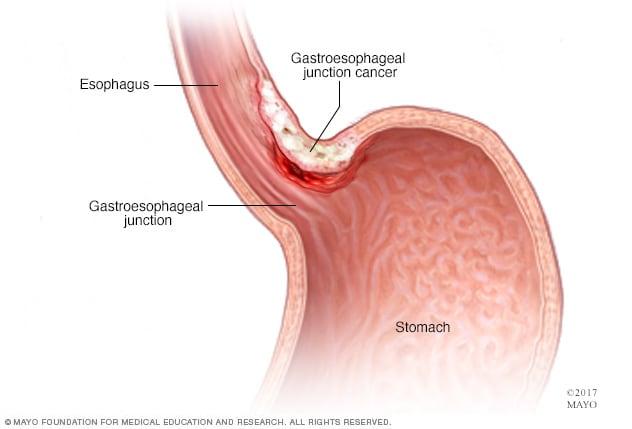 gastric cancer adenocarcinoma