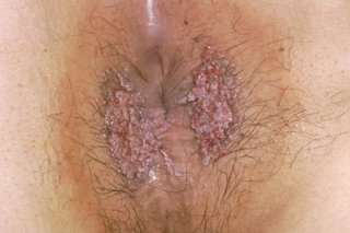 hpv warts male