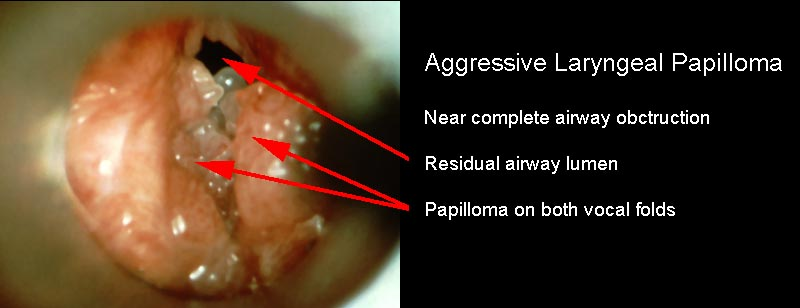 laryngeal papilloma warts