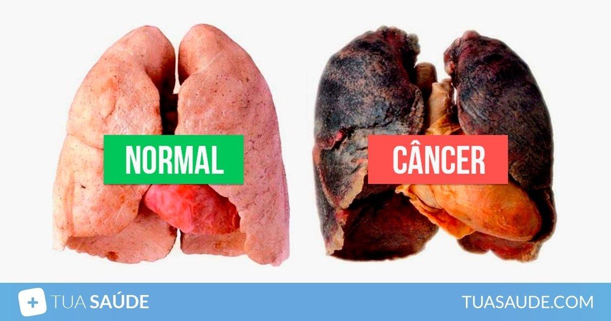 cancerul pulmonar curs parazitii irefutabil album
