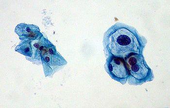 hpv virus pap test