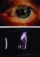 Neoplasm de ochi