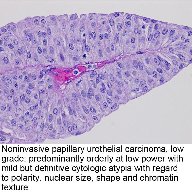 papillary urothelial cell carcinoma papiloma virus uman romana
