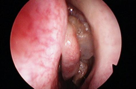 papilloma virus sul naso