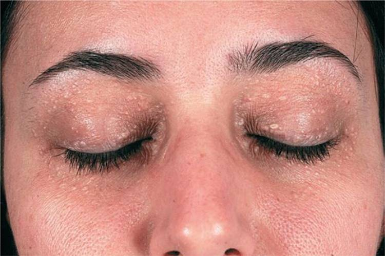 papilloma icd 10 eyelid