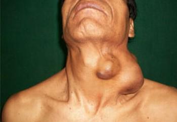 papiloma en tiroides