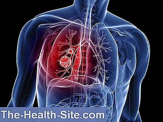 Cancerul pulmonar a început să fie vindecat