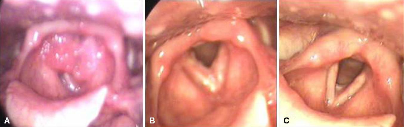 juvenile onset respiratory papillomatosis papiloma en boca sintomas