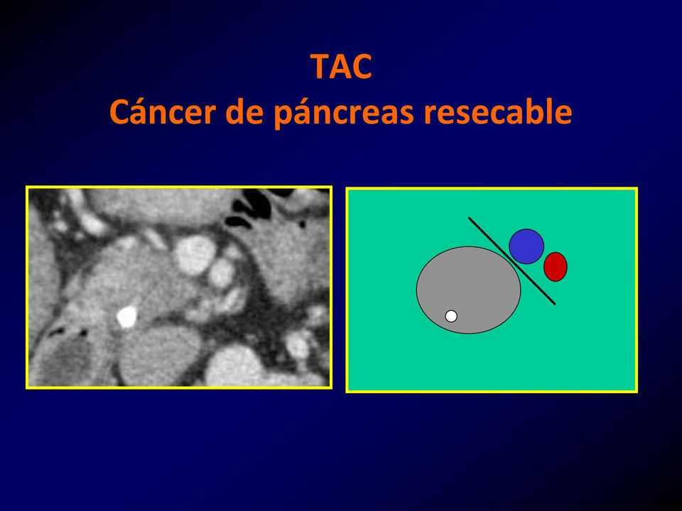 cancer pancreas resecable