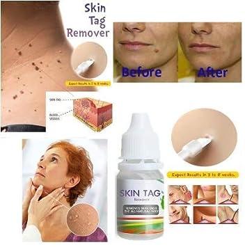 genital warts removal creams
