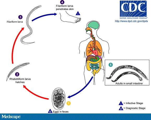 conjunctival papilloma removal cancerul biliar simptome