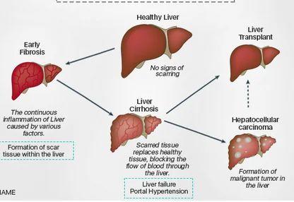 hepatocellular cancer patients cancer pulmonar f