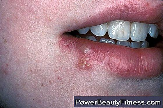 hpv alla gola virus del papiloma humano verrugas en el ano