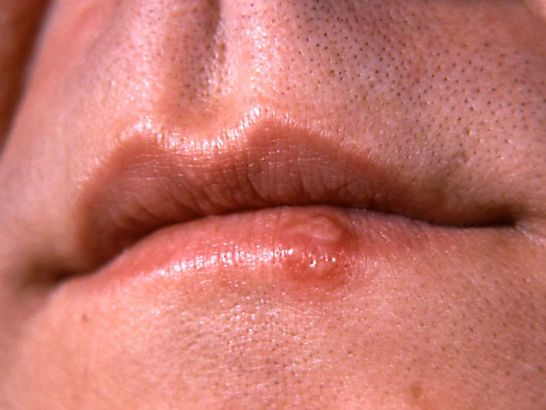 papillary thyroid cancer guidelines traitement contre papillomavirus