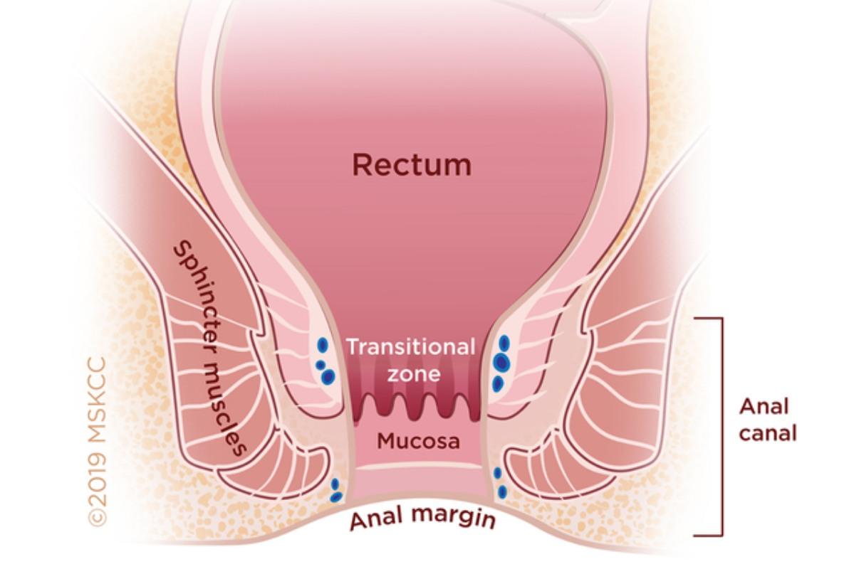 hpv cancer colorectal catena detoxifiere colonului