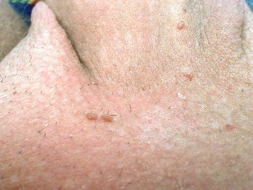 endobronchial papillomatosis