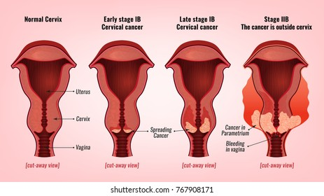 hpv genital cancer papilloma breast meaning