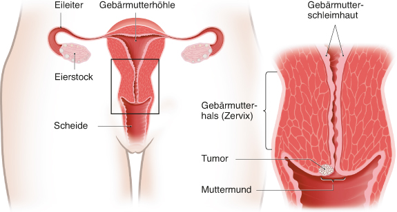 hpv impfung lymphknotenschwellung