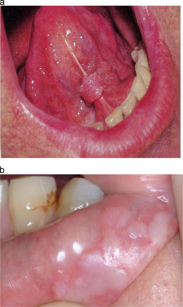 hpv in mouth and throat pictures cancer found benign