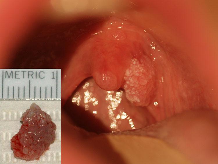 benign cancer in lungs papillomas in elderly