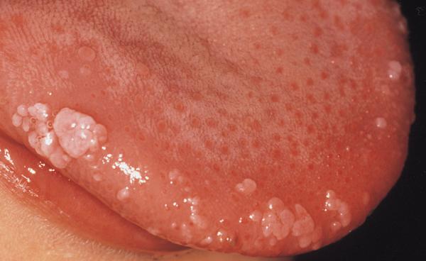 hpv kod muskaraca simptomi test bocca papilloma virus