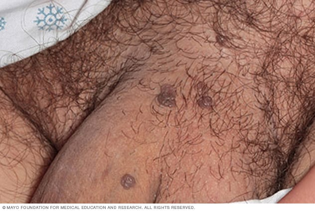 hpv symptoms other than warts
