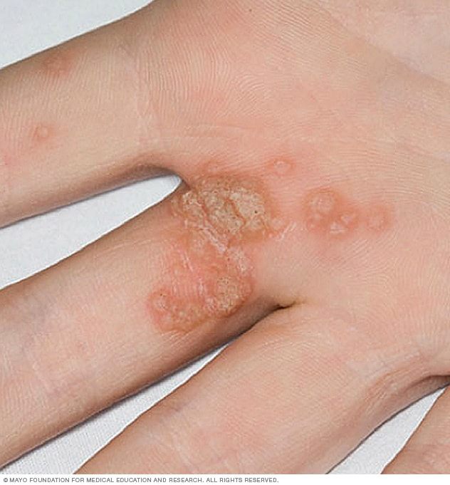 hpv symptoms warts on hands