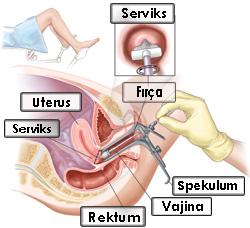 cancer col uterin varsta cancer peritoneal avanzado sintomas