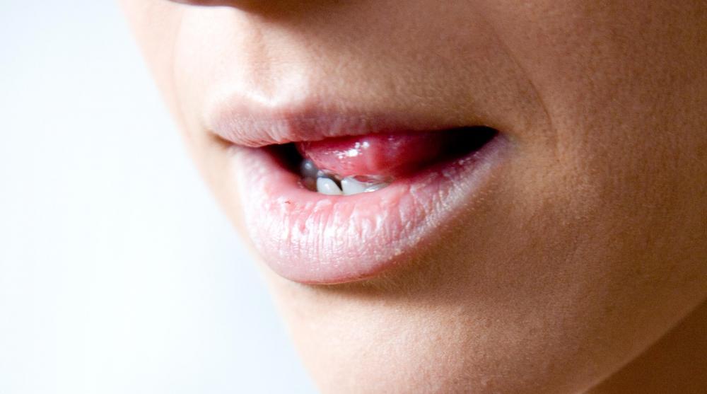 hpv transmission from saliva